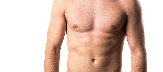 Brustverkleinerung beim Mann, Gynäkomastie - Ästhetische Chirurgie, Ästhetik Berlin