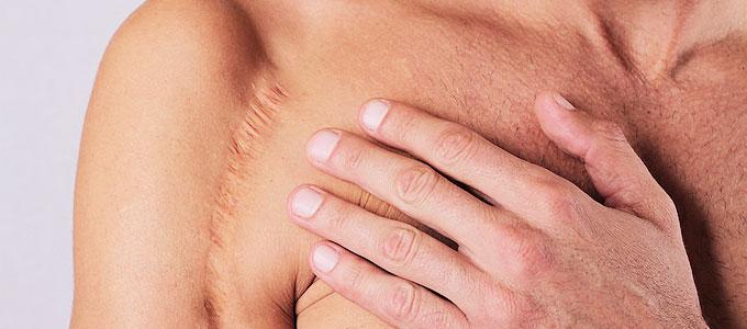 Narbenkorrektur am Körper - Ästhetische Chirurgie, Ästhetik Berlin